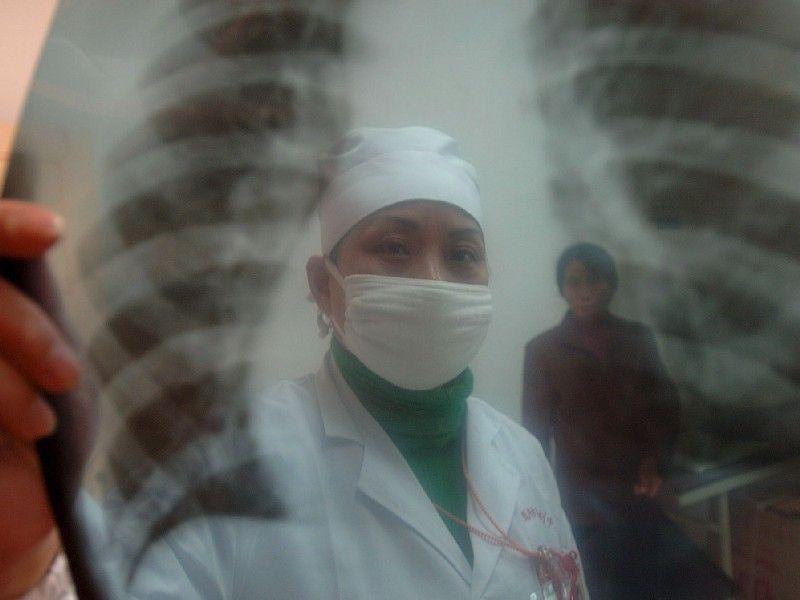 у знакомого открытая форма туберкулеза
