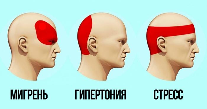 get-rid-of-headache-e1490815543501