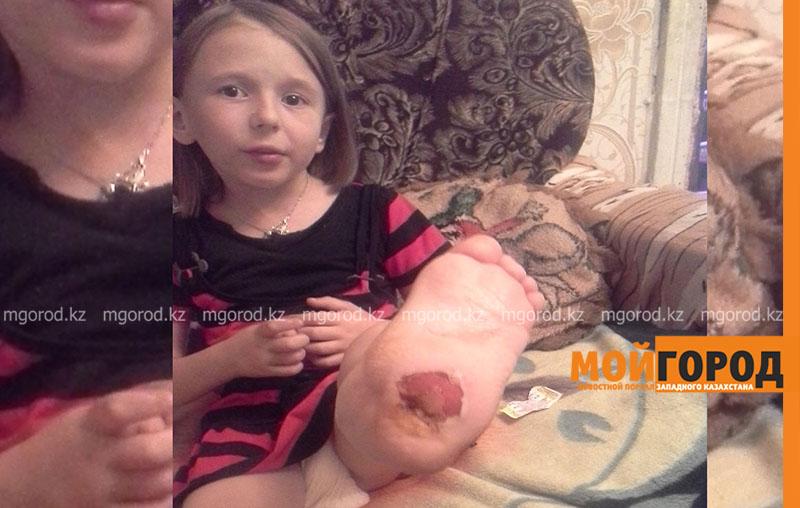 80 тысяч тенге не хватает на операцию на ноге девочке из Уральска