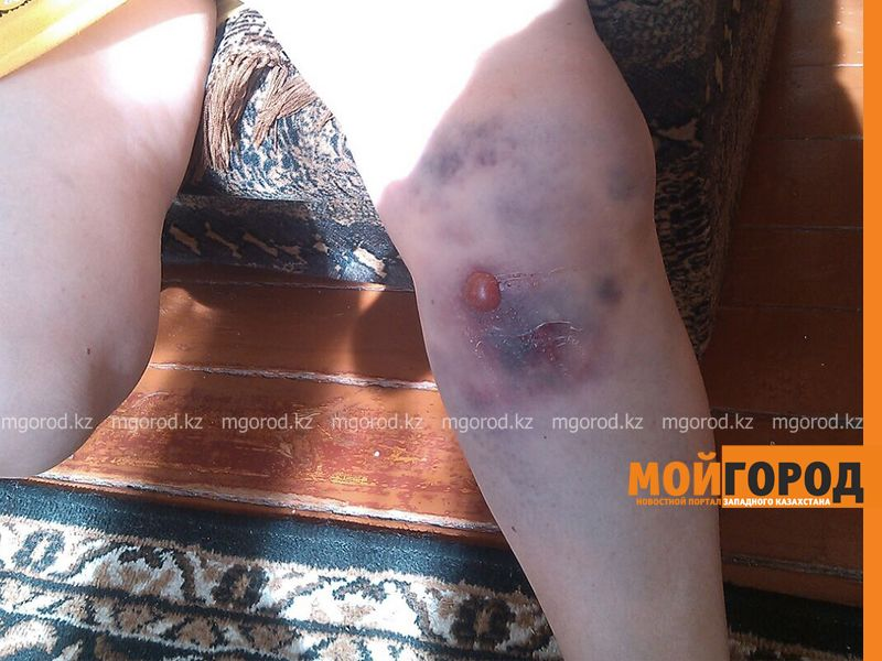 В Уральске женщина повредила ногу, провалившись в арык