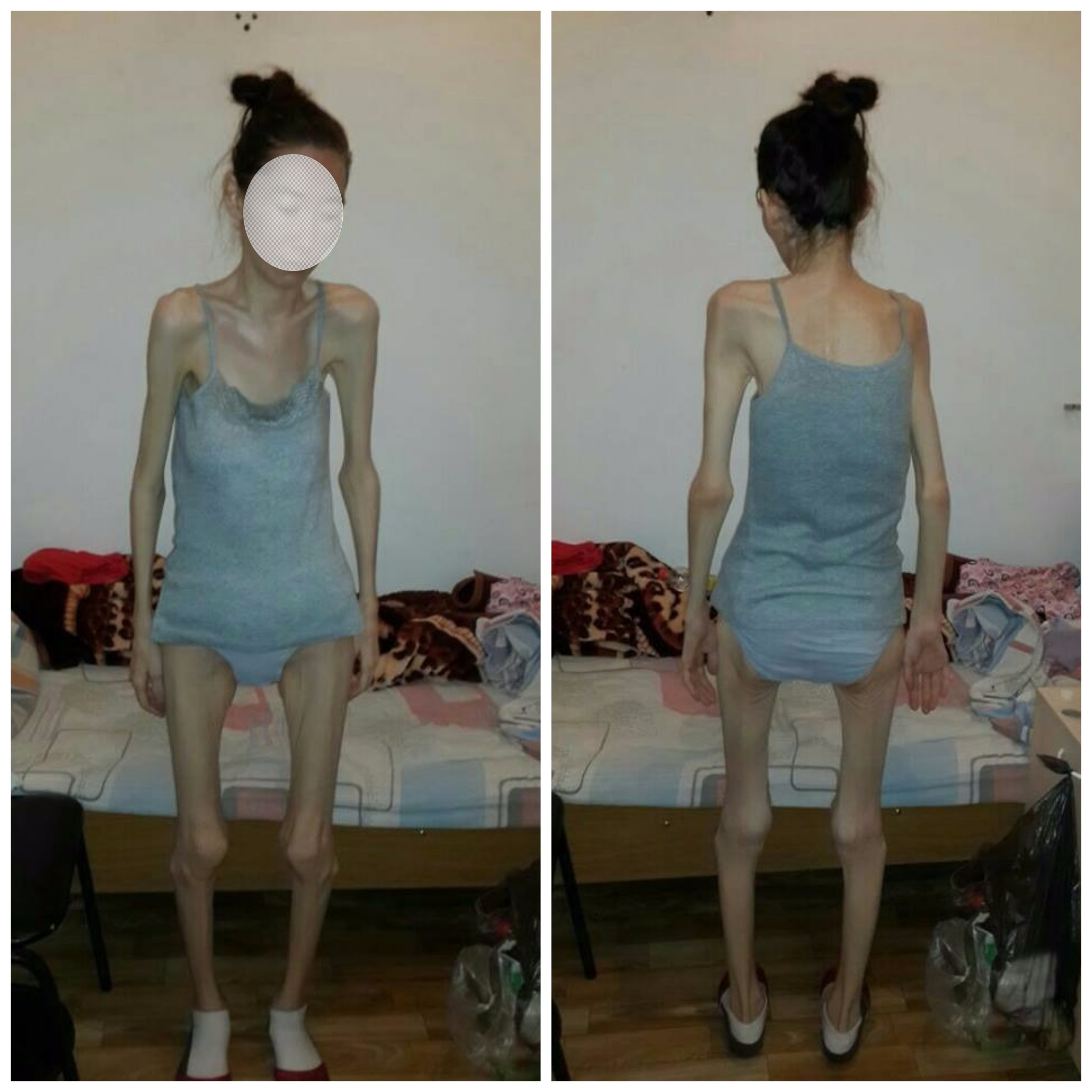 Новости Атырау - Жители Атырау пытаются спасти больную туберкулезом девушку