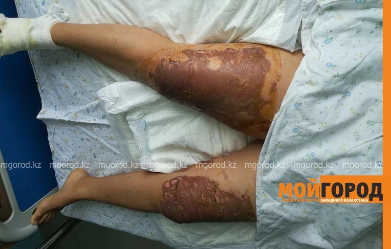 Новости Актау - В Мангистауской области 30-летний мужчина опрокинул котел с кипящим маслом на лицо продавцу