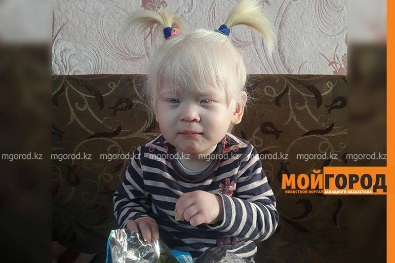 Новости Уральск - В Уральске родители девочки-альбиноса просят помочь им с жильем