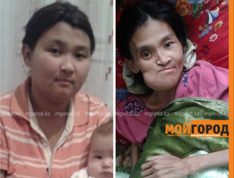 Страдающая анорексией женщина вернулась в Атырау из-за отсутствия денег (видео)