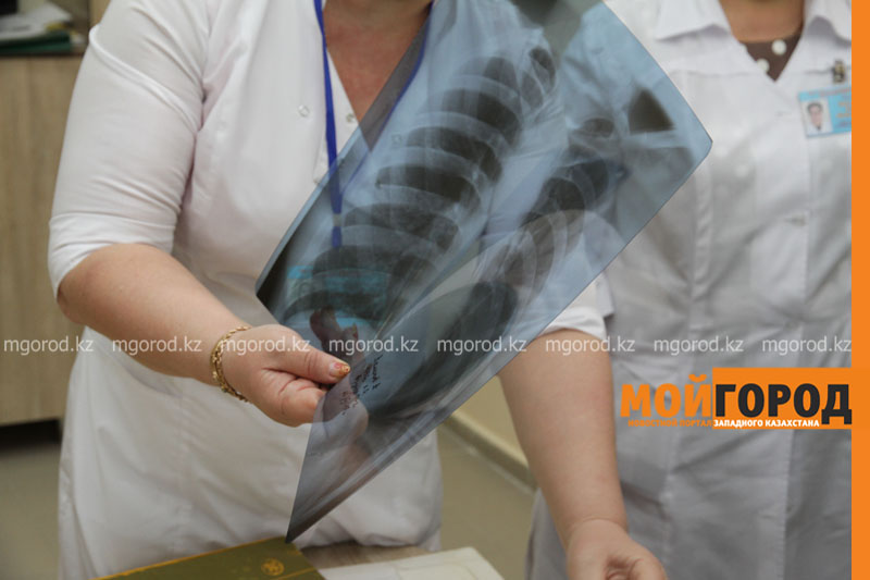 В Атырауской области на учете состоят 1000 больных туберкулезом