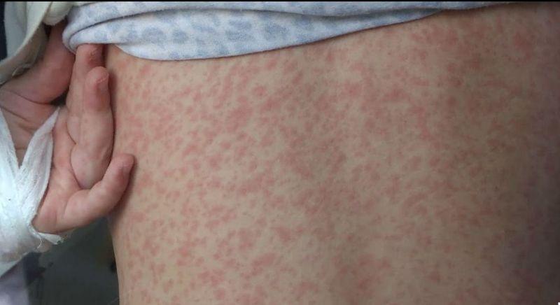 Вспышка кори в Казахстане: количество заболевших достигло 910 человек