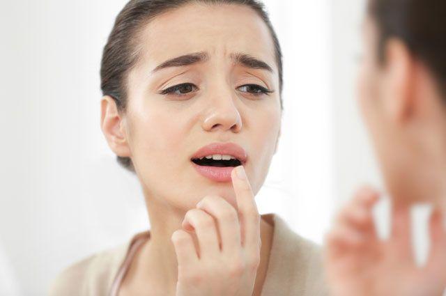 Новости Актау - Мой способ борьбы с простудой на губах