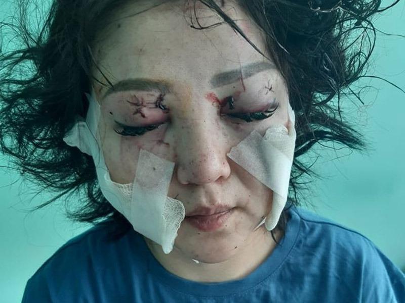 Актюбинец изуродовал лицо бывшей жене Актюбинец обезобразил бывшую жену