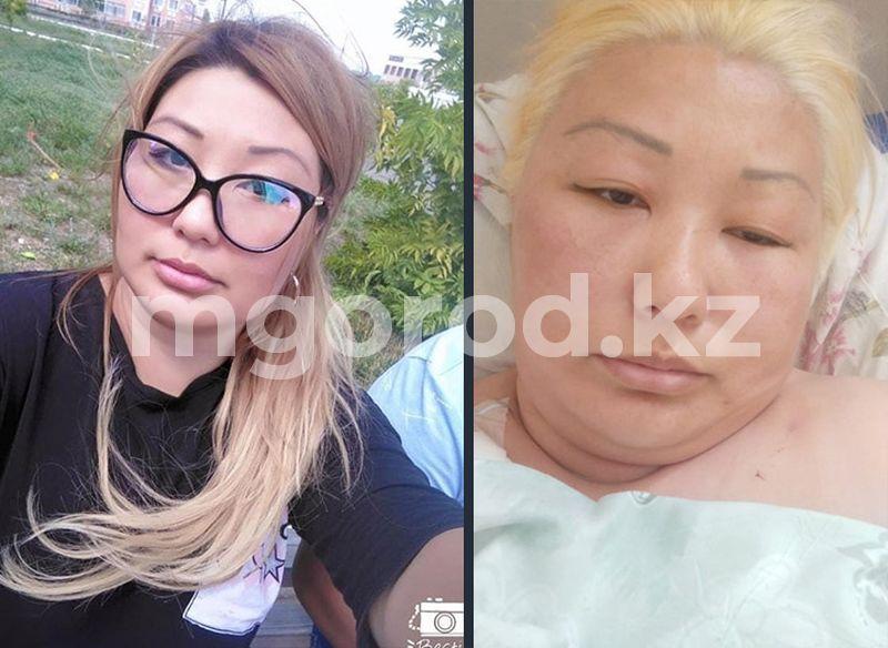 В Уральске женщина попала в реанимацию после окрашивания волос в салоне красоты В Уральске женщина попала в реанимацию после окрашивания волос в салоне