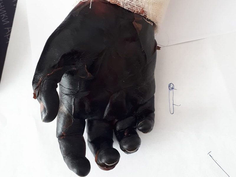 8-летнему мальчику ампутировали руку после лечения у целителя Мальчику ампутировали руку после лечения у целителя